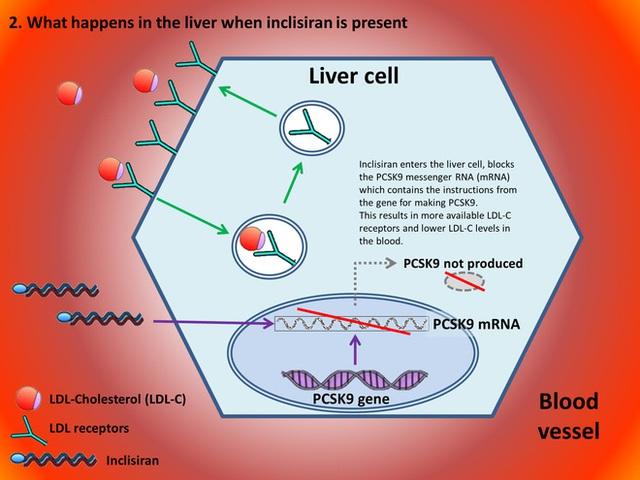 Một mũi tiêm RNA có giá hơn 60 triệu, giúp hạ mỡ máu, phòng ngừa đột quỵ vừa được cơ quan y tế Anh chấp thuận - Ảnh 1.