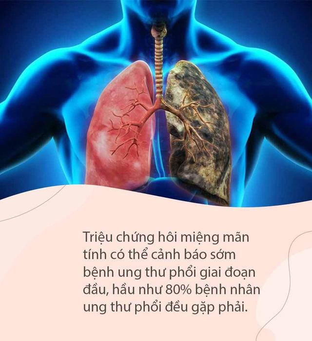Miệng có mùi đặc biệt này không ung thư thì cũng suy thận, tiểu đường, can thiệp sớm sẽ phòng ngừa các biến chứng nguy hiểm - Ảnh 5.
