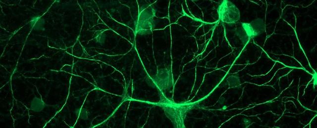 Công việc của các tế bào sao là quét sạch các khớp thần kinh thừa.