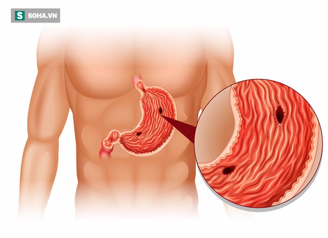 Suýt thủng dạ dày vì chữa bệnh bằng tinh nghệ: BS cảnh báo sai lầm trong trị bệnh dạ dày - Ảnh 2.