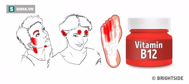 6 dấu hiệu trên mặt tố cáo bạn đang thiếu vitamin trầm trọng - Ảnh 2.