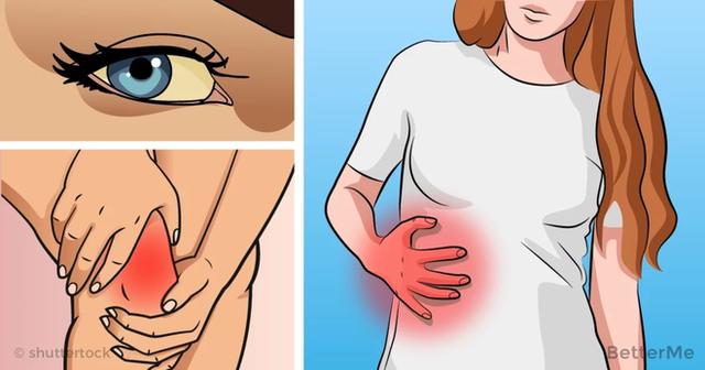 Những bệnh nhân bị xơ gan có nguy cơ cao bị ung thư gan và cuối cùng có thể phải ghép gan.