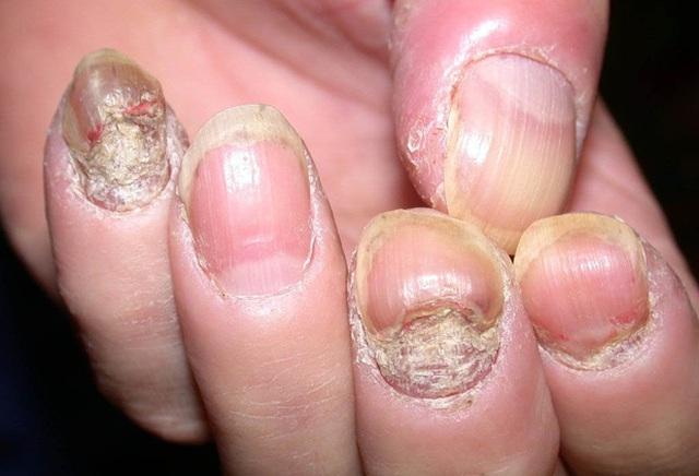 Dừng ngay thói quen cắn móng tay nếu không muốn rước bệnh vào người - Ảnh 3.