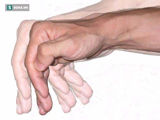 Nhóm triệu chứng thuộc vận động và ngoài vận động của bệnh Parkinson cần phân biệt và nhận biết sớm