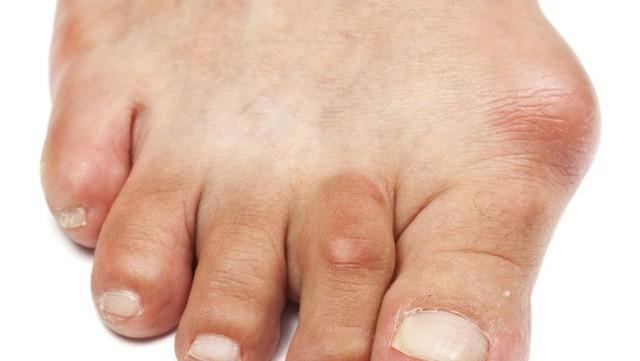 5 triệu chứng lạ và tưởng vô hại nhưng hóa ra lại là dấu hiệu báo bệnh nguy hiểm - Ảnh 2.