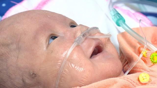 Cuộc gặp gỡ xúc động của 2 đứa trẻ sau vụ cháy lớn ở Đê La Thành: Anh đây, em đừng khóc - Ảnh 2.