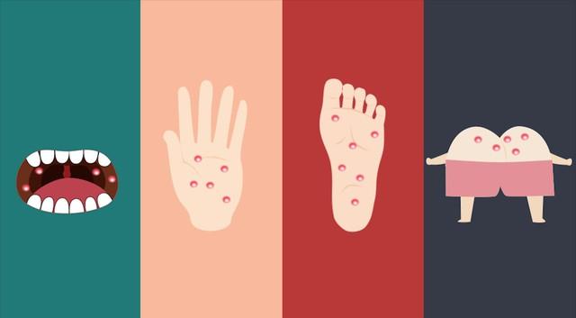 Bệnh tay chân miệng đang vào mùa dịch và dưới đây là những điều mà cả người lớn lẫn trẻ nhỏ đều phải biết - Ảnh 1.