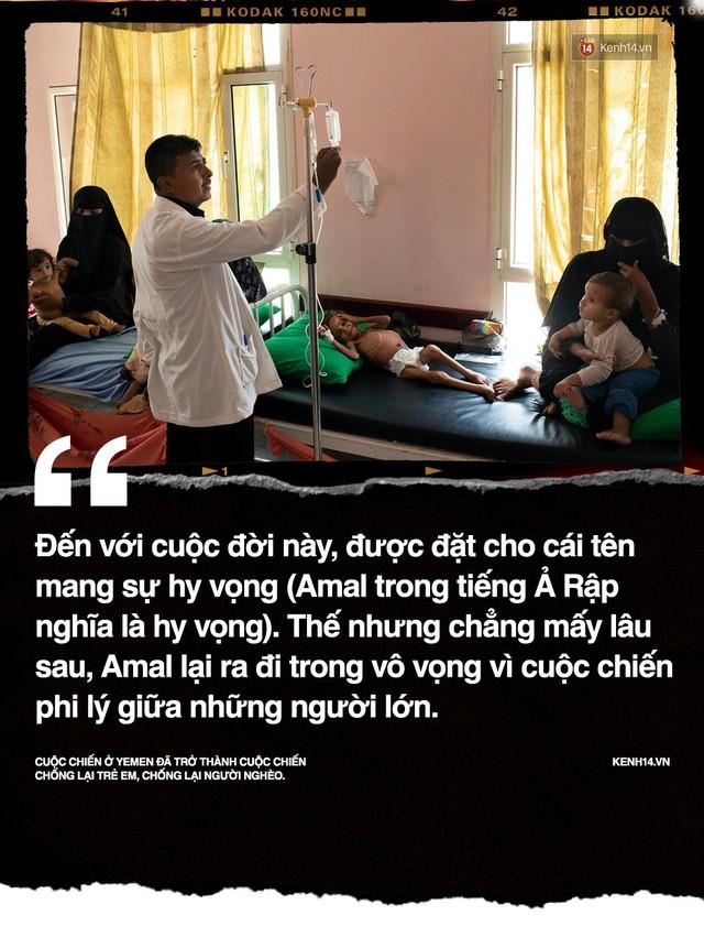 Amal Hussain: Biểu tượng nạn đói Yemen và sứ mệnh hy sinh cho cả dân tộc trên vai những đứa trẻ - Ảnh 2.