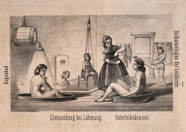 Chuyện đi tắm cũng có lịch sử đen tối: Được sử dụng như một kiểu tra tấn để chữa bệnh tâm thần - Ảnh 2.
