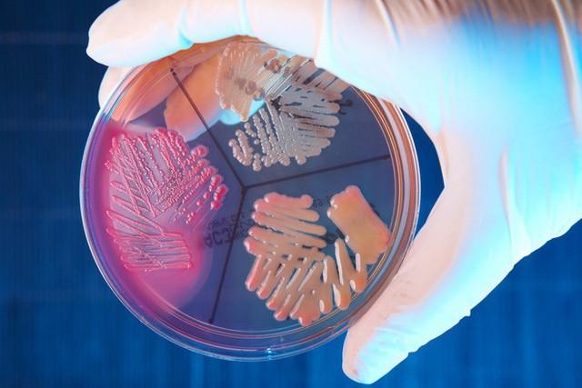 Kháng sinh mạnh nhất đang bị siêu vi khuẩn kháng lại một cách bí ẩn - Ảnh 3.