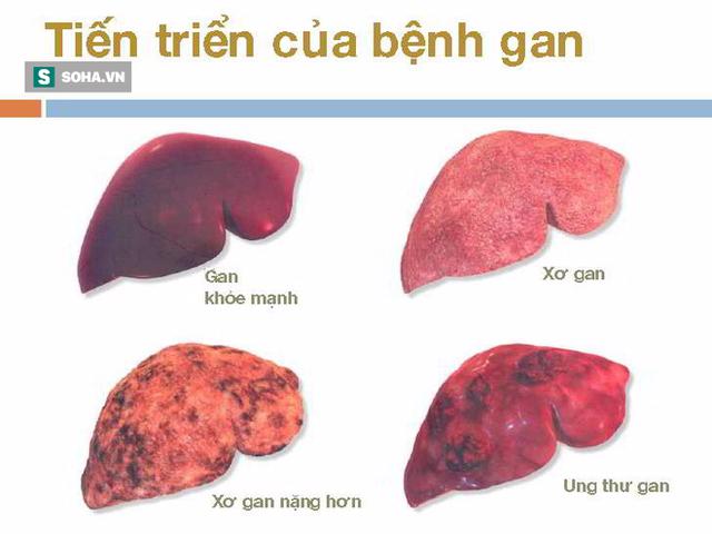 Xơ gan có thể dẫn đến ung thư gan: Đây là 4 nguyên tắc quan trọng giúp phòng ngừa hiệu quả - Ảnh 2.