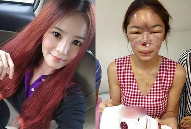 """Cơn sốt phẫu thuật thẩm mỹ tại Hàn Quốc: Nguồn cơn nào khiến chị em không thể cưỡng lại vòng xoáy """"đập đi xây lại""""? - Ảnh 3."""