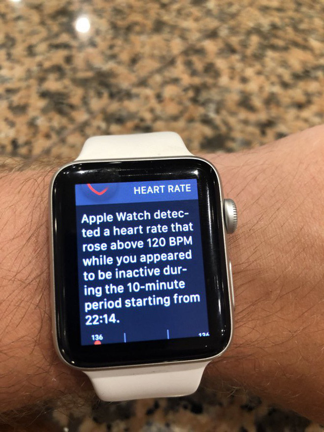 Xem World Cup cũng có thể khiến bạn chết sớm: Hàng loạt Apple Watch cảnh báo nhịp tim cao quá tải, gấp đôi bình thường - Ảnh 4.