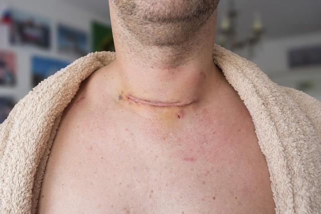 Thấy 5 dấu hiệu này, bạn nên đi khám vì ung thư tuyến giáp đang lớn dần trong cơ thể - Ảnh 2.