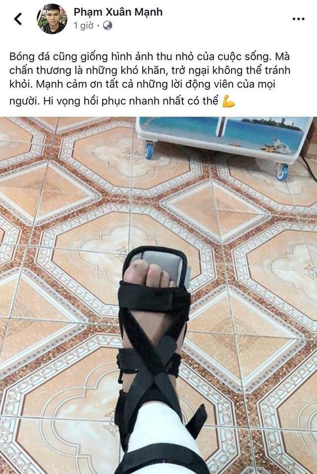 U23 Việt Nam: Có nên ưu ái quân của bầu Hiển? - Ảnh 1.