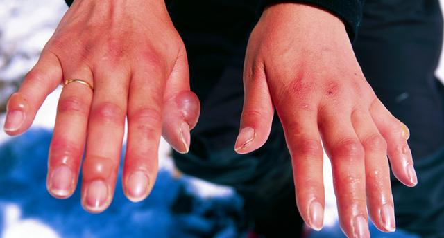 Khi nhiệt độ giảm thấp đừng chủ quan nếu da bạn tê cứng, ngứa ran hay đổi màu - Ảnh 2.
