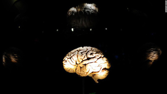 Nếu bạn có vòng eo to, xin chia buồn, não bạn sẽ nhỏ - Ảnh 2.