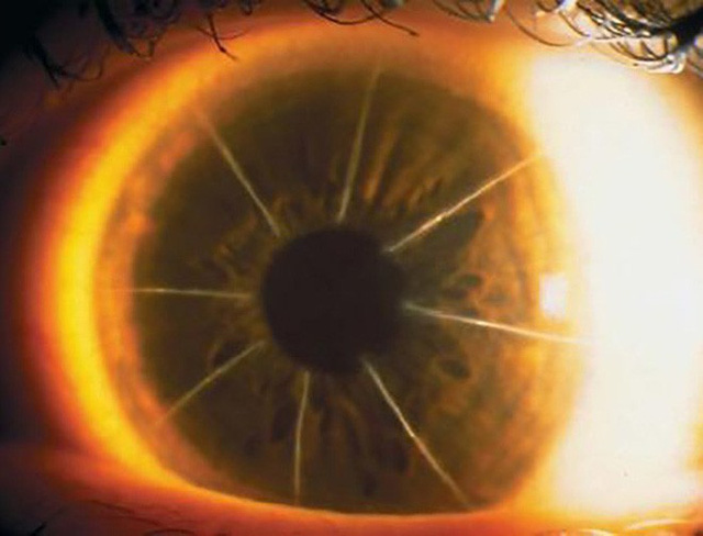 Bệnh nhân với con mắt siêu hiếm trông như bánh pizza 8 miếng: Minh chứng cho thấy y học đã từng đáng sợ như thế nào - Ảnh 2.