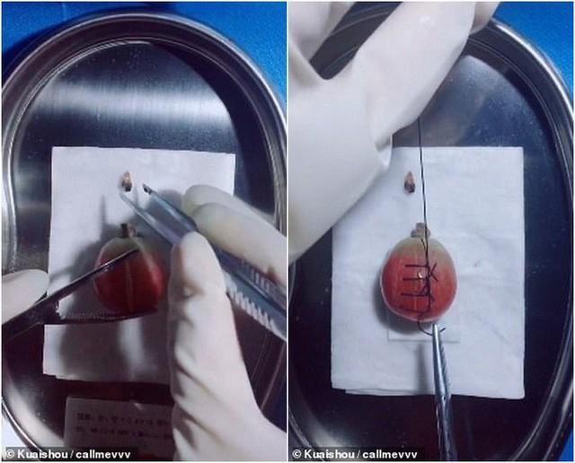 Gặp gỡ vị bác sỹ Trung Quốc chuyên phẫu thuật cho trái cây để nâng cao nhận thức về phẫu thuật cho cộng đồng - Ảnh 1.
