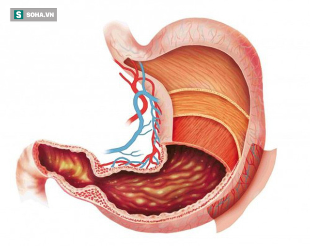 Những nhóm người dễ bị ung thư dạ dày: 3 việc cần làm ngay để ngăn ngừa mắc bệnh - Ảnh 1.