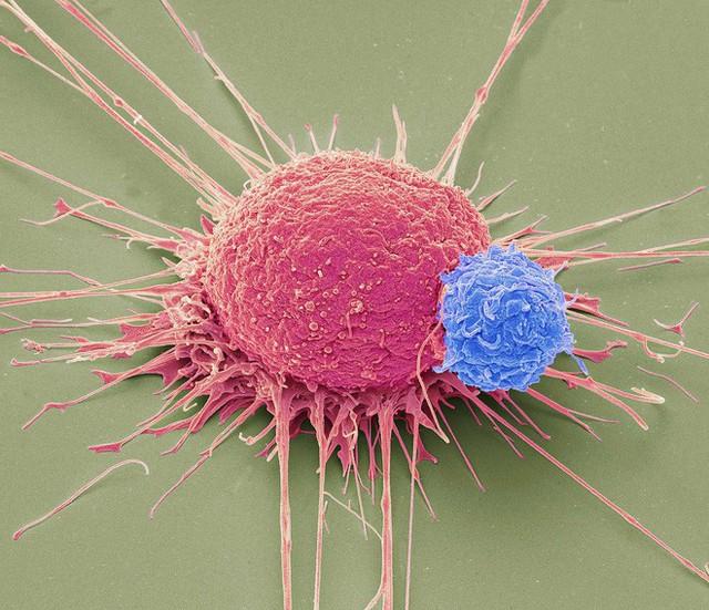 Tiêm vi khuẩn vào khối u để giết chết ung thư: Thử nghiệm cho kết quả đầy hứa hẹn - Ảnh 2.