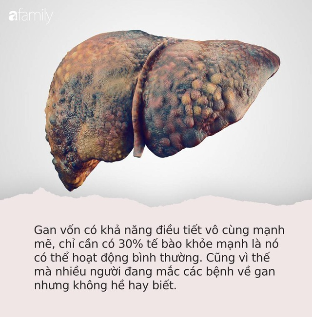 """Hãy để ý: Nếu có dấu hiệu """"3 đen 2 hôi"""" trên cơ thể thì có thể bạn đã mắc các bệnh về gan cần đi khám gấp - Ảnh 1."""