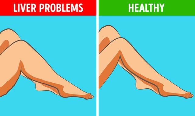 6 dấu hiệu bất thường ở chân cảnh báo các cơ quan nội tạng đang có bệnh nguy hiểm - Ảnh 1.