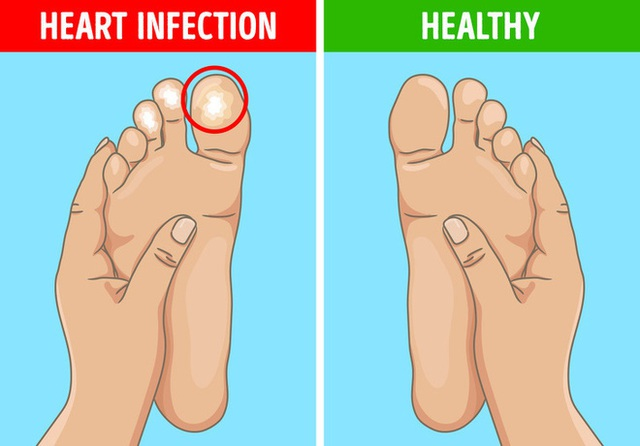6 dấu hiệu bất thường ở chân cảnh báo các cơ quan nội tạng đang có bệnh nguy hiểm - Ảnh 3.