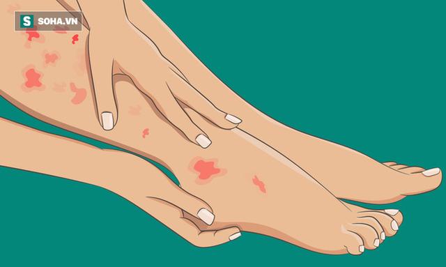 6 dấu hiệu bất thường ở chân cảnh báo các cơ quan nội tạng đang có bệnh nguy hiểm - Ảnh 5.