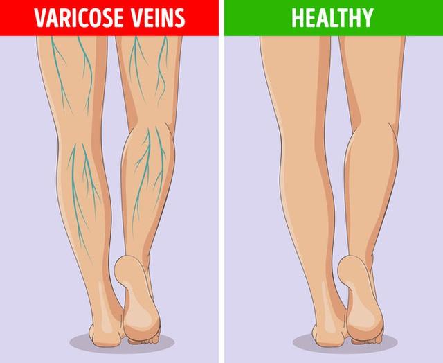 6 dấu hiệu bất thường ở chân cảnh báo các cơ quan nội tạng đang có bệnh nguy hiểm - Ảnh 6.