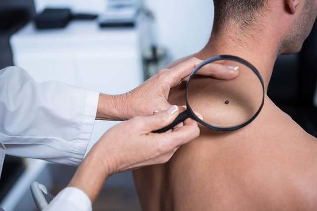 Đây là những triệu chứng cảnh báo ung thư sớm mà con trai không nên chủ quan bỏ qua - Ảnh 3.