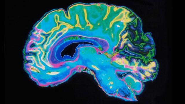 Nghiên cứu: Não bộ phụ nữ trẻ hơn đàn ông bằng tuổi khoảng 6 năm - Ảnh 3.