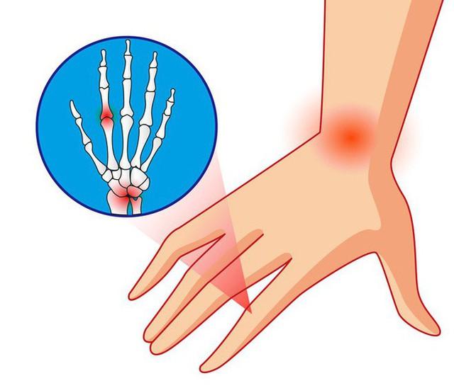 Những dấu hiệu điển hình giúp phát hiện sớm 10 căn bệnh nguy hiểm ai cũng nên biết - Ảnh 1.