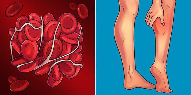 Những dấu hiệu điển hình giúp phát hiện sớm 10 căn bệnh nguy hiểm ai cũng nên biết - Ảnh 8.