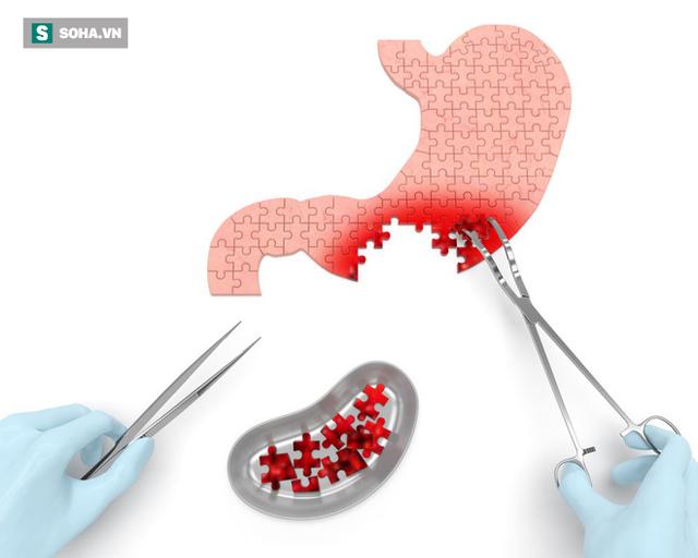 Nếu có 1 trong 4 dấu hiệu sớm nhất của bệnh ung thư dạ dày, tuyệt đối không nên xem nhẹ - Ảnh 1.