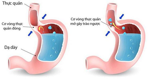 Nếu có 1 trong 4 dấu hiệu sớm nhất của bệnh ung thư dạ dày, tuyệt đối không nên xem nhẹ - Ảnh 4.