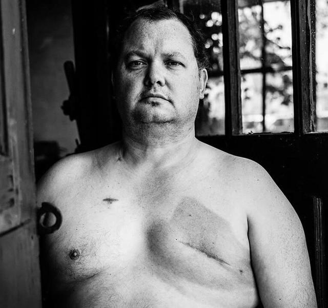 Nhìn từ sự việc tại Quảng Bình: Tại sao đàn ông cũng có thể mắc ung thư vú? - Ảnh 3.