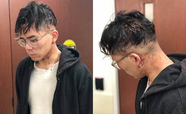 Nhân viên tố bị chủ nhà hàng Việt Nam tại Mỹ đánh đập tàn nhẫn vì xin nghỉ sau 2 năm làm việc quá sức - Ảnh 2.