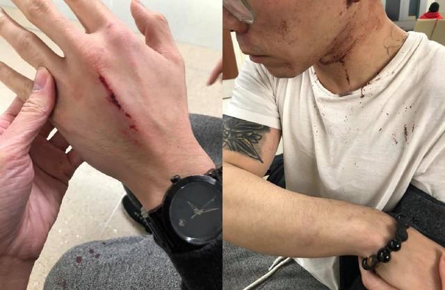 Nhân viên tố bị chủ nhà hàng Việt Nam tại Mỹ đánh đập tàn nhẫn vì xin nghỉ sau 2 năm làm việc quá sức - Ảnh 4.