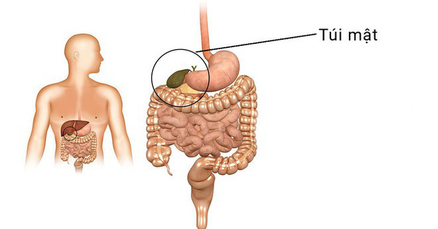 5 loại bệnh vặt không lo chữa, để quá lâu sẽ có nguy cơ tiến triển thành ung thư - Ảnh 2.