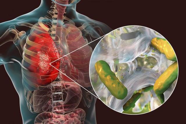 Nhiễm trùng kháng tất cả kháng sinh, một bé gái người Anh được cứu sống nhờ thể thực khuẩn biến đổi gen - Ảnh 1.