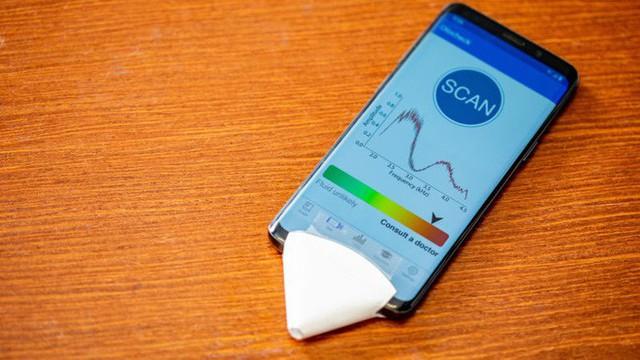 Ứng dụng điện thoại giúp chẩn đoán bệnh viêm tai giữa tại nhà - Ảnh 1.