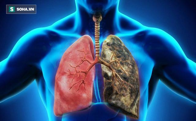 Người khỏe trước hết nhờ phổi: 6 việc giúp giải phóng phổi khỏi bệnh tật, ung thư - Ảnh 1.