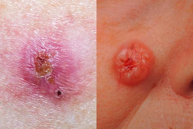 BS Mỹ chỉ cách phân biệt các loại ung thư da khác nhau, dấu hiệu phát hiện bệnh sớm nhất - Ảnh 1.