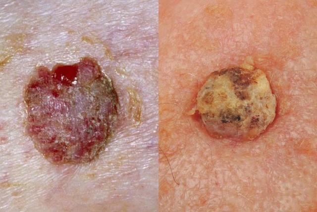 BS Mỹ chỉ cách phân biệt các loại ung thư da khác nhau, dấu hiệu phát hiện bệnh sớm nhất - Ảnh 2.