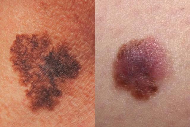 BS Mỹ chỉ cách phân biệt các loại ung thư da khác nhau, dấu hiệu phát hiện bệnh sớm nhất - Ảnh 3.
