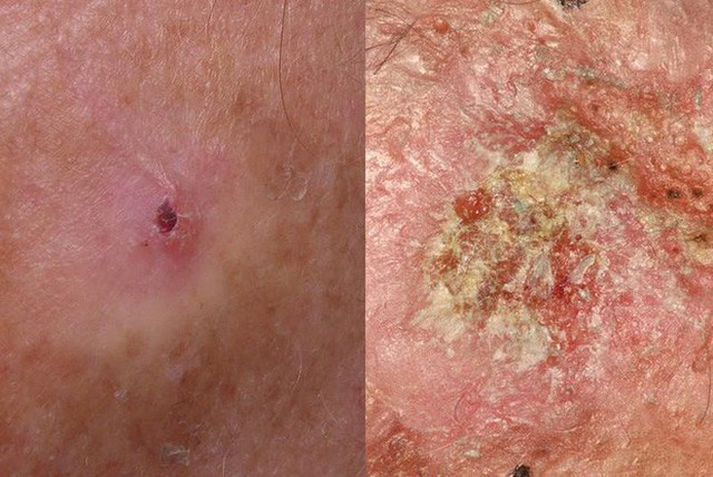 BS Mỹ chỉ cách phân biệt các loại ung thư da khác nhau, dấu hiệu phát hiện bệnh sớm nhất - Ảnh 4.
