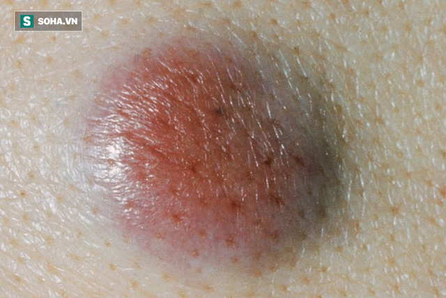 BS Mỹ chỉ cách phân biệt các loại ung thư da khác nhau, dấu hiệu phát hiện bệnh sớm nhất - Ảnh 5.