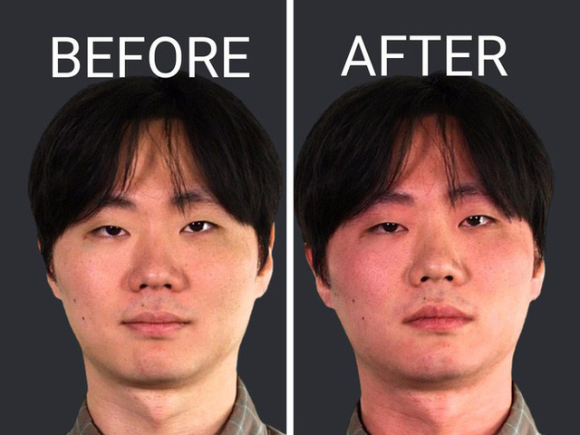 70% người Châu Á bị đỏ mặt khi uống rượu bia: Cách tránh triệu chứng liên quan ung thư này - Ảnh 1.