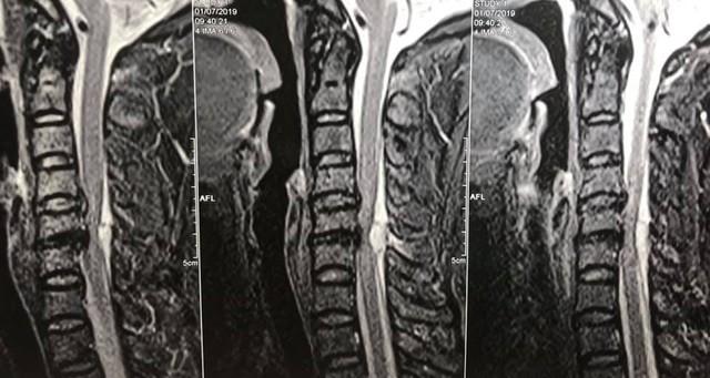Từ vụ việc cấp cứu bệnh nhân liệt 2 chân ở bệnh viện Việt Đức, bệnh nhân thoát vị đĩa đệm cần lưu ý những gì? - Ảnh 1.